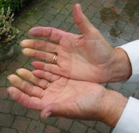 Немеют руки после алкоголя: причины и лечение